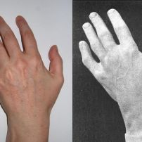 Janina's left hand and Chopin's left hand